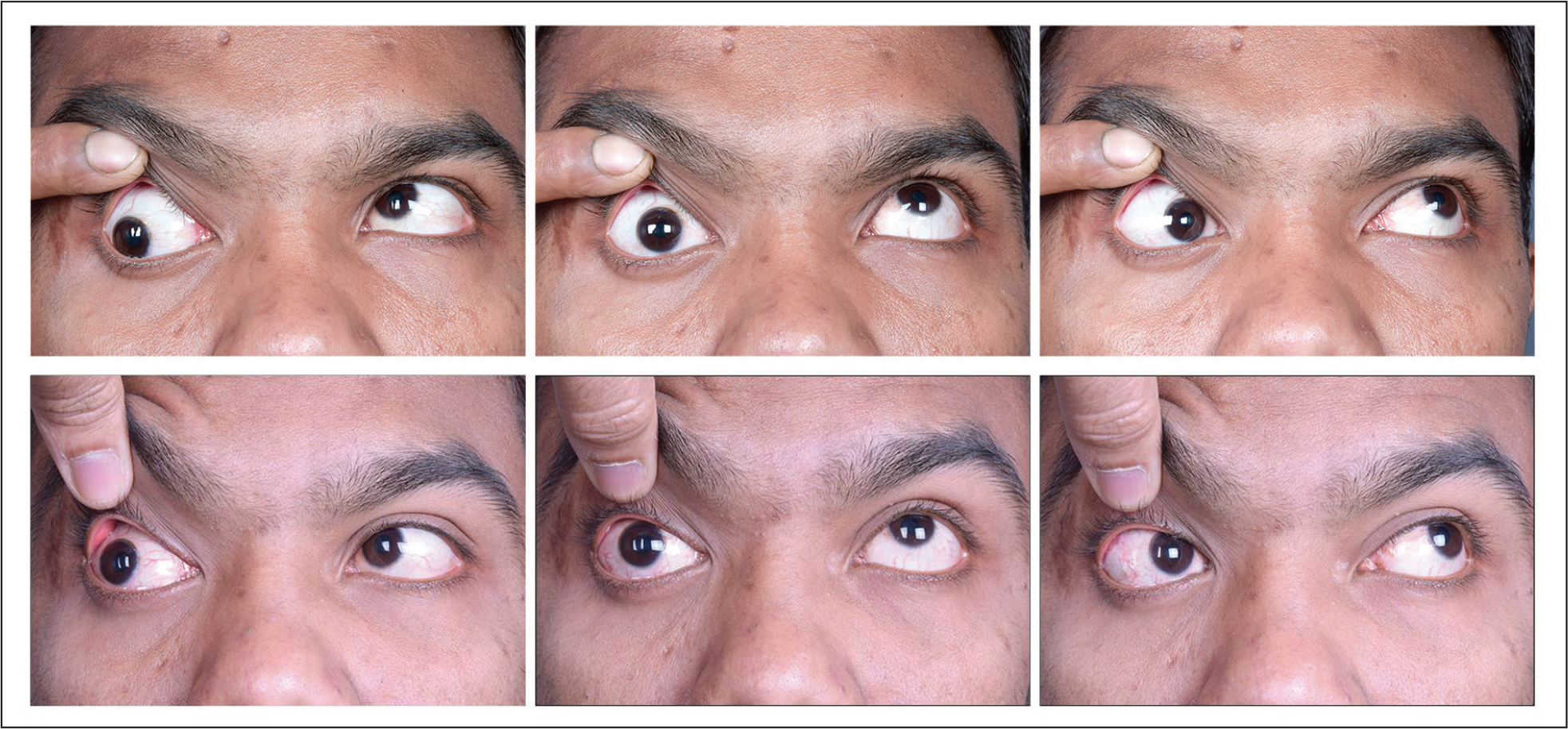 Patient 4 with monocular elevation deficit. Preoperatively the patient has a −5 limitation of elevation in abduction (top left) compared to a −4 limitation in straight up gaze (top center) and a −3 limitation in adduction (top right). Postoperatively there is improvement in the elevation, especially in abduction (bottom left), and also in straight up gaze (bottom center) and adduction (bottom right).