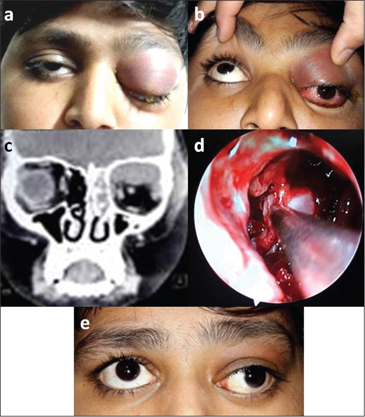 (A) A 5-year-old boy with complete blepharoptosis, eyelid erythema and edema, and fullness of orbital sulci with proptosis. (B) On lifting the eyelid, the conjunctiva showed congestion and chemosis with restricted elevation and inferior dystopia. (C) The computed tomography scan (coronal sections) showed florid ethmoid sinusitis and superior subperiosteal abscess. (D) Intraoperative endoscopic view of functional endoscopic sinus surgery with subperiosteal abscess drainage. (E) At 6 months of follow-up, the orbital cellulitis appeared resolved with restriction of elevation (anatomical failure).