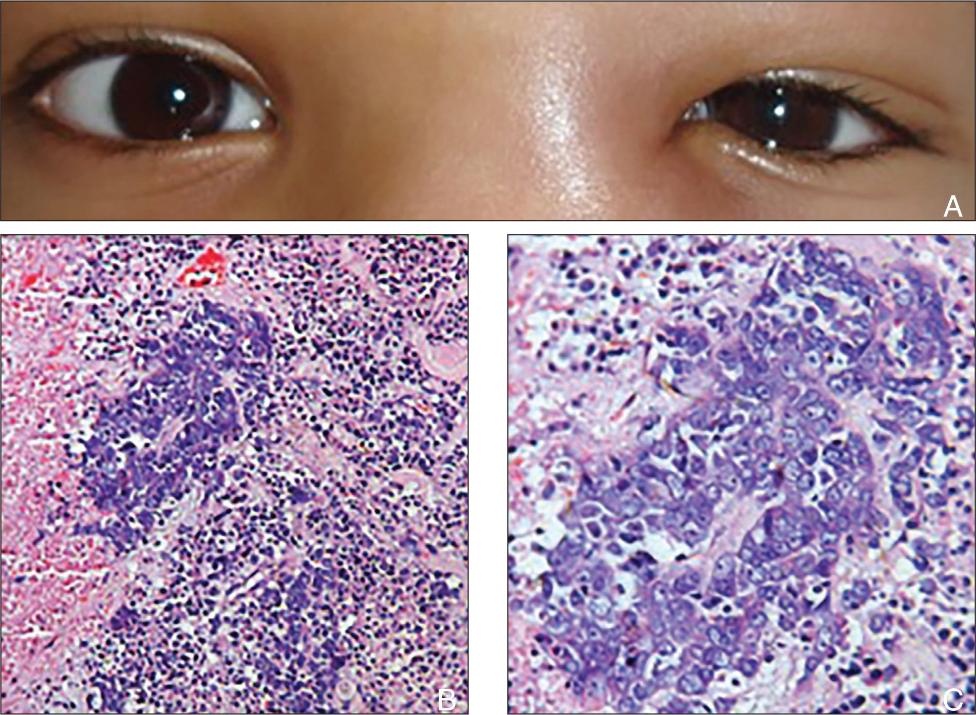 A 6-year-old boy with (A) left side swelling over the lacrimal sac area; (B) large areas of necrosis, hemorrhage, and islands of poorly differentiated squamous cell carcinoma (hematoxylin–eosin stain, original magnification ×100); and (C) higher magnification of the same (hematoxylin–eosin stain, original magnification ×400).