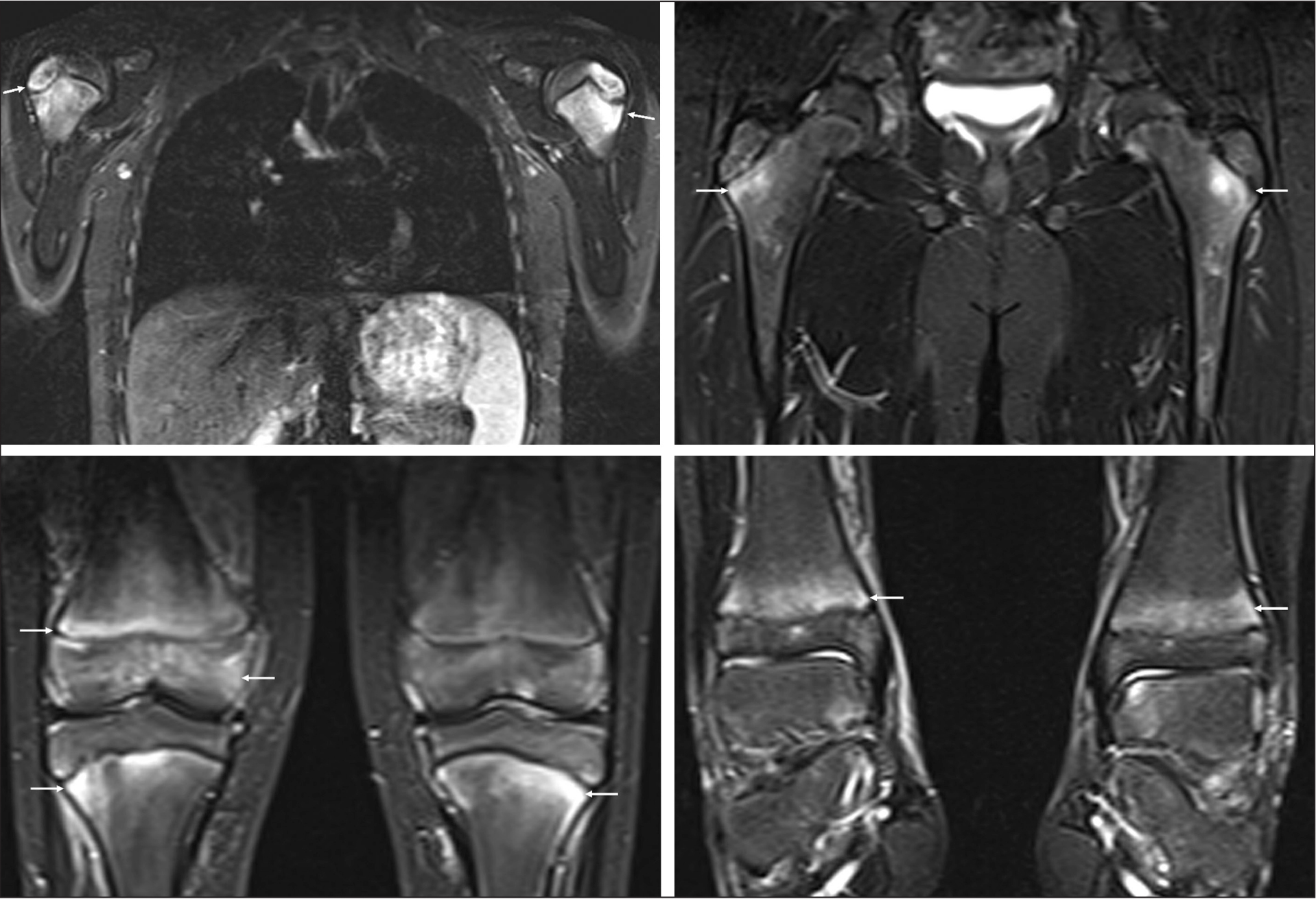 Selected full body magnetic resonance imaging demonstrates symmetric T2 hyperintensity of the proximal humeri and proximal and distal femurs and tibiae.
