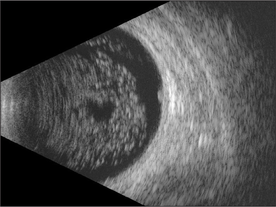 "Ultrasonography demonstrated diffuse, homogeneous, calcified vitreous opacities with posterior ""clear zone,"" typical for asteroid hyalosis. The retinoblastoma scar measured 2.8 mm in thickness."