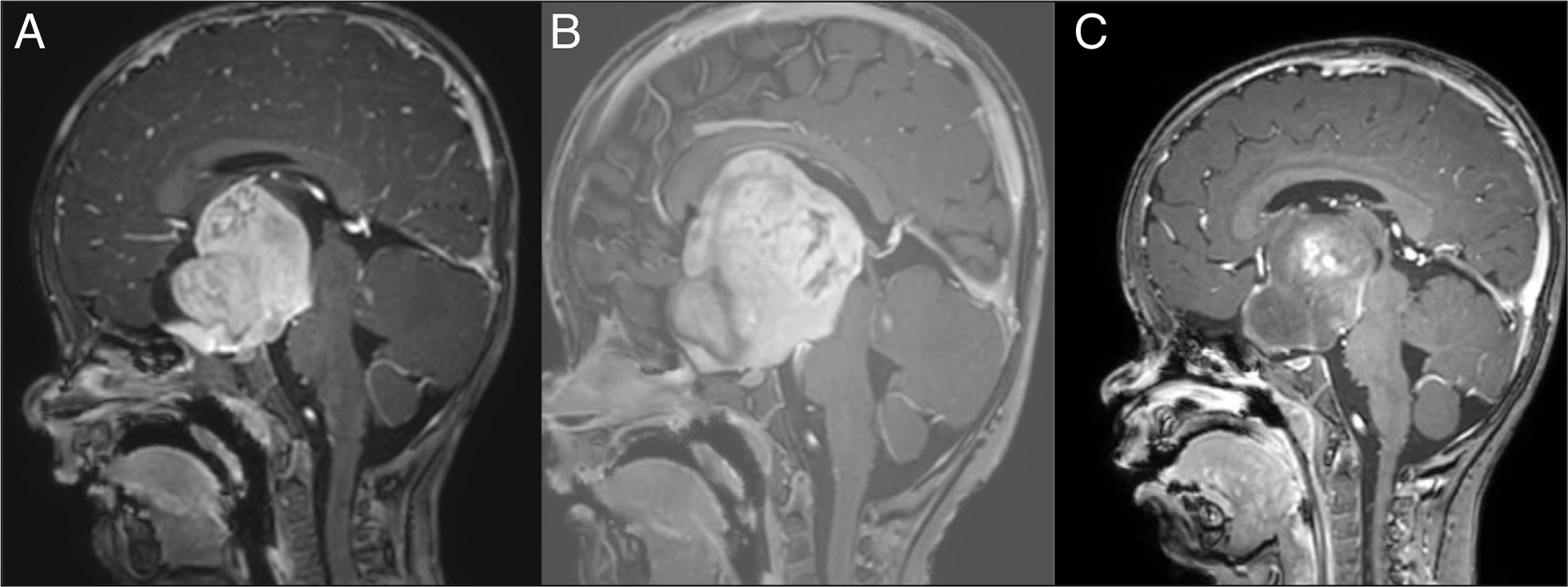 Case 1: Magnetic resonance imaging of the brain. (A) Age 13 months. Sagittal post-contrast T1-weighted image at time of diagnosis and initiation of chemotherapy. It shows a large enhancing mass that is centered in the hypothalamus, involves the optic chiasm, compresses the third ventricle, and pushes the midbrain backward. Signal characteristics are so characteristic of pilocytic astrocytomas that a biopsy was considered unnecessary in the setting of neurofibromatosis type 1. (B) Age 18 months. Sagittal post-contrast T1-weighted image shows tumor growth causing increasing ventriculomegaly that required ventriculo-peritoneal shunting and septostomy (not shown). (C) Age 22 months. Sagittal post-contrast T1-weighted image shows tumor shrinkage. The patient had gained weight with gastrojejunal feedings and was more cheerful. The nystagmus disappeared.