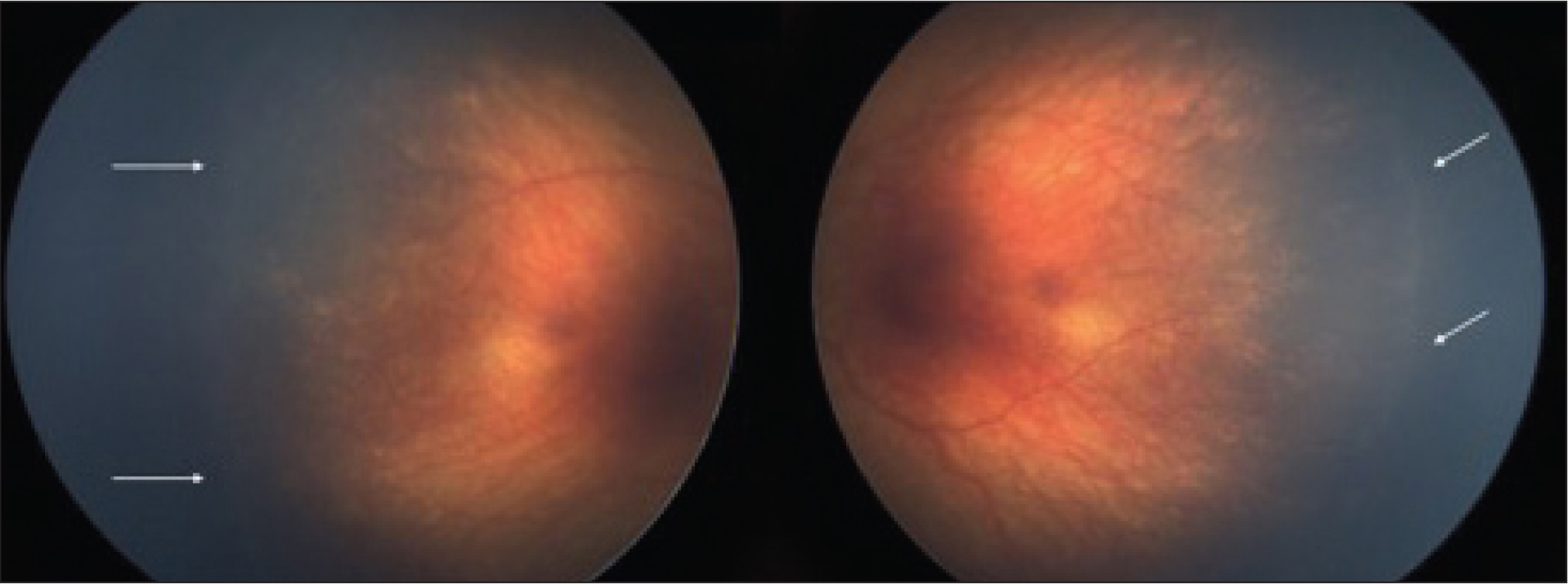 Postconceptual age of 48 weeks: stage 2 retinopathy of prematurity with 12 clock hours of involvement in zones II and III in both eyes.