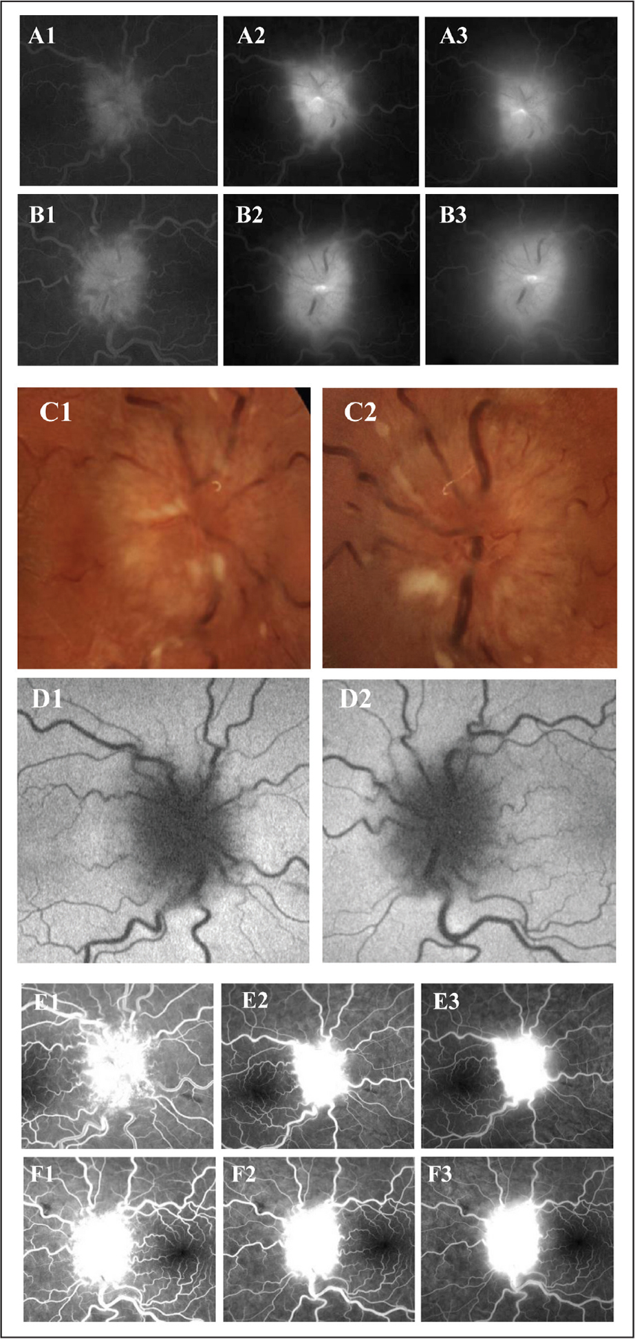 Optic nerve imaging of case 4. A1–A3 (right eye), B1–B3 (left eye): oral fluorescein angiography images at 20, 30, and 60 minutes after dye consumption. Increasing hyperfluorescence with indistinct margins. C1 (right eye), C2 (left eye): color photographs showing 360 degrees of optic nerve head elevation with some large vessel obscuration at the disc margin in both eyes. Cotton wool spots are also present on each nerve. D1 (right eye), D2 (left eye): negative autofluorescence of each optic nerve head. E1–E3 (right eye), F1–F3 (left eye): intravenous fluorescein angiography images at < 1, 3, and > 5 minutes after dye injection. Increasing hyperfluorescence at the nerve head in both eyes with indistinct margins.