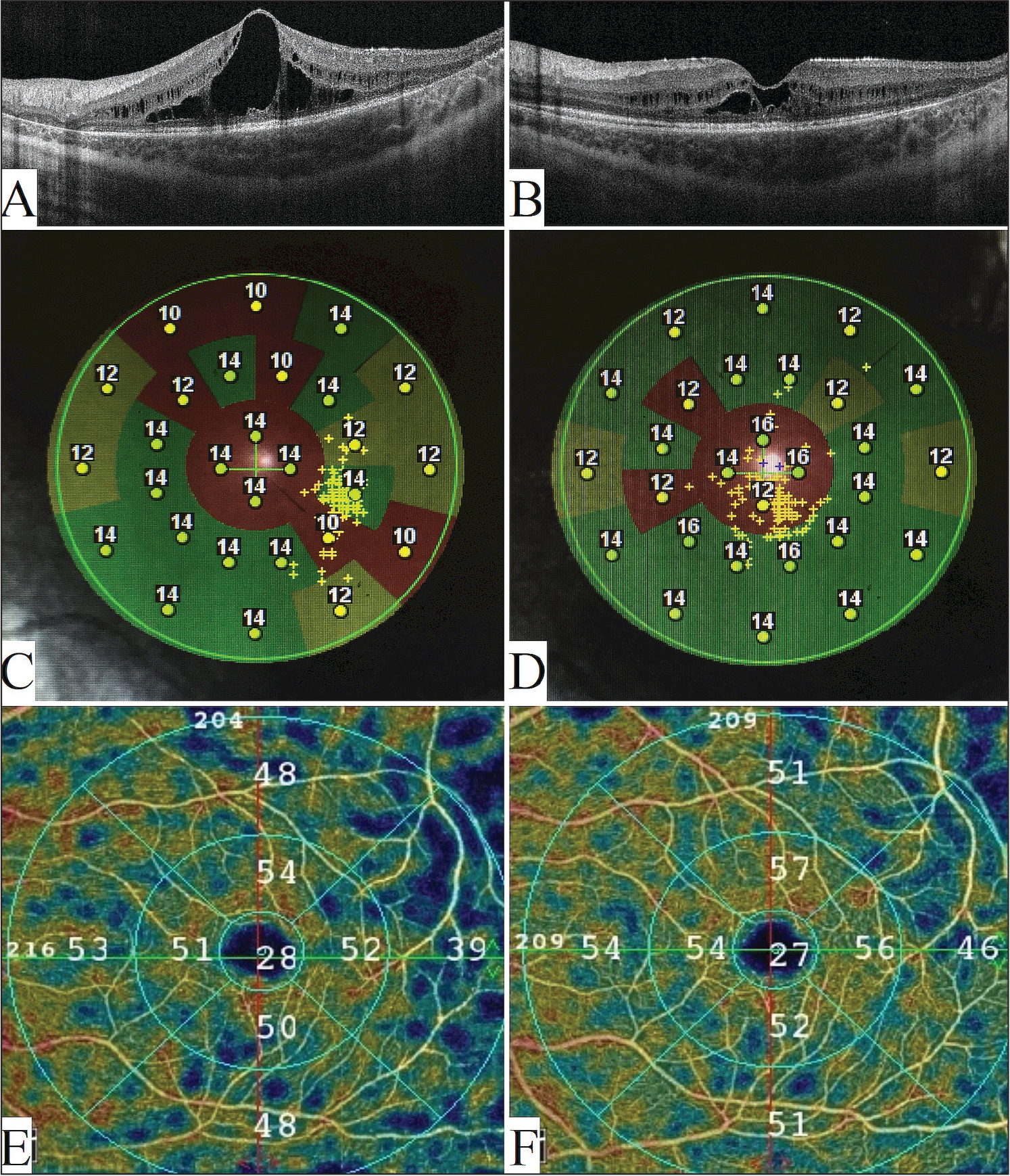 Multimodal imaging findings of the left eye of case 1 at baseline and after treatment. (A) Optical coherence tomography (OCT) at baseline showed prominent intraretinal cystic spaces with a central macular thickness (CMT) of 671 µm. (B) One month after three intravitreal bevacizumab injections, there was marked improved in intraretinal cycstic spaces and CMT improved to 336 µm. (C) Macular microperimetry at baseline showed decreased sensitivity in the central, superior, and temporal macular areas with a mean sensitivity of 12.8 dB. (D) One month after three intravitreal bevacizumab injections, there was improvement in the macular sensitivity with a mean of 13.8 dB. (E) OCT angiography at baseline showed areas of capillary drop-out, especially in the temporal macula. (F) One month after three injections, there was improvement in macular vascular density measurements.