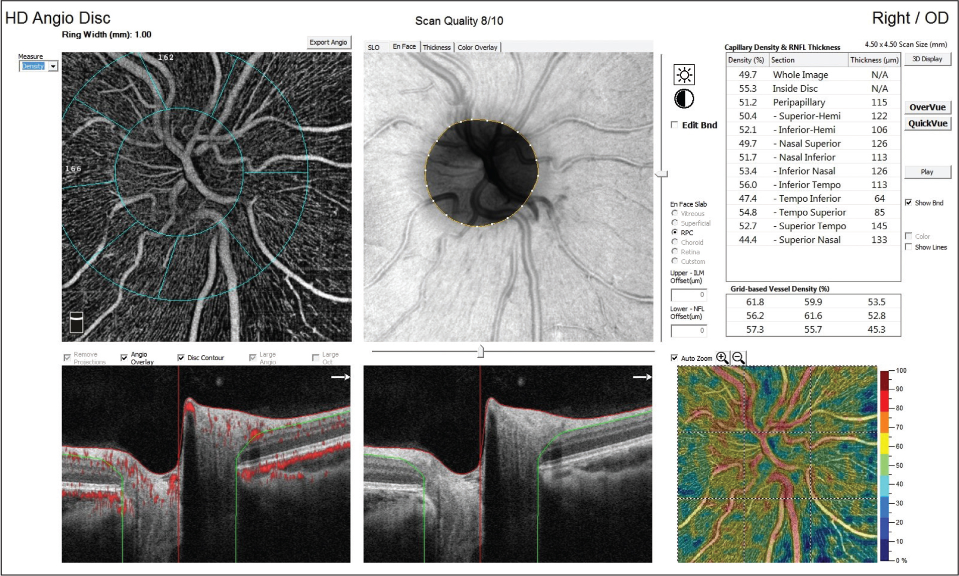 Radial peripapillary capillary vessel density (RPCvd) was automatically calculated between two optic nerve head–centered concentric circles with a diameter of 2 mm (inner) and 4 mm (outer) (ring width, 1 mm) at eight equal sectors and two equal hemispheres (superior and inferior).