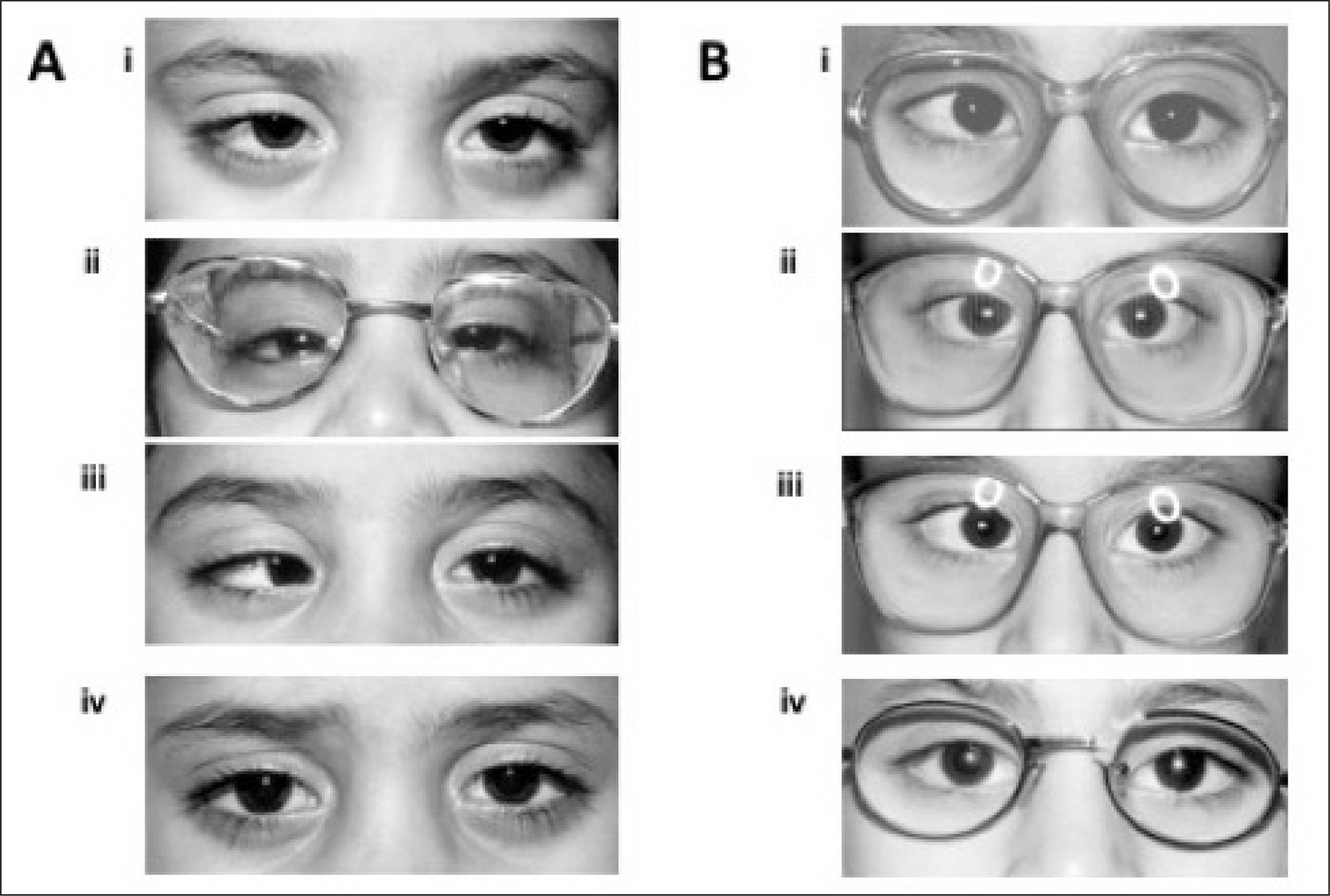 (A) Build-up of 25 prism diopters (PD). (i) Non-accommodative esotropia with an initial angle of 25 PD. (ii) Orthotropia with 50-PD Fresnel press-on prisms. (iii) Esotropia of 50 PD after prism adaptation. (iv) Orthotropia after surgery for a target angle of 50 PD (5-mm bimedial muscle recession and 5-mm right lateral rectus muscle resection). (B) No prism build-up. (i) Partially accommodative esotropia with an initial angle of 25 PD. (ii) Orthotropia through 25-PD press-on Fresnel prisms. (iii) Esotropia of 25 PD after prism adaptation. (iv) Orthotropia after surgery for a target angle of 25 PD (4-mm bimedial muscle recession).