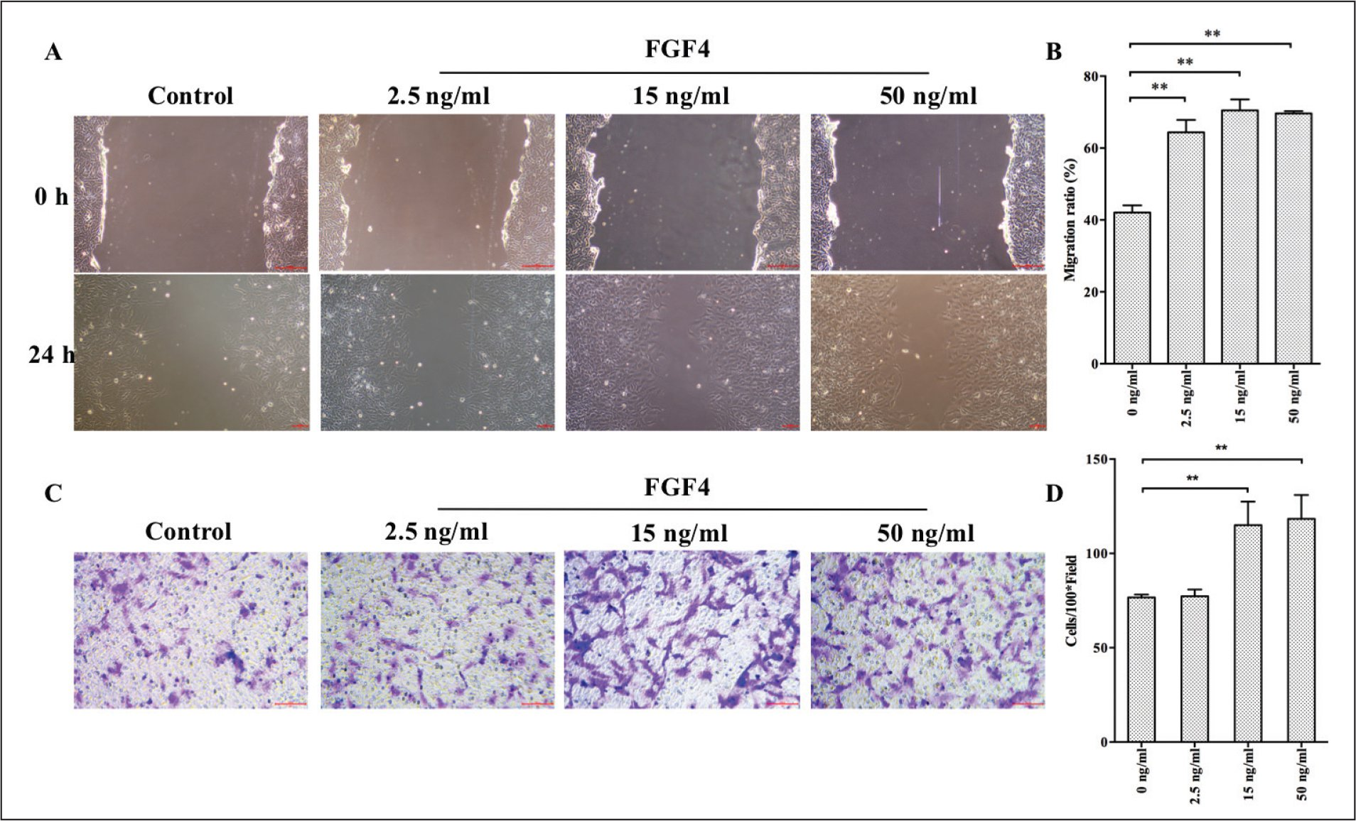 Human LEC cell line SRA01/04 (SRA) cells were treated with different doses of fibroblast growth factor 4 (FGF4) (2.5, 15, or 50 ng/mL) for 24 hours. (A) Effect on cell migration was measured with a wound-healing assay. (B) Migration rates of SRA cells are presented as means ± standard deviation (SD), and the migration of untreated control cells and cells treated with different levels of FGF4 differed significantly (**P < .001). (C) Representative images of SRA cells during Transwell migration. After migration and staining with crystal violet, images of the migrated cells (purple stained) were taken under a microscope. Bar = 100 µm. (D) Quantification of cell migration is presented as mean ± SD (of 3 microscopic fields at 100× total magnification; ** P < .001).