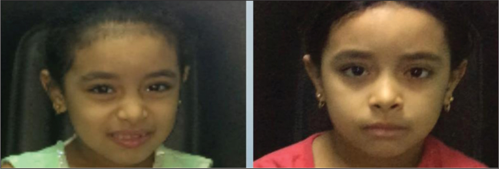 Complete correction of face turn with straight head in patient 9 of non-transposition group.