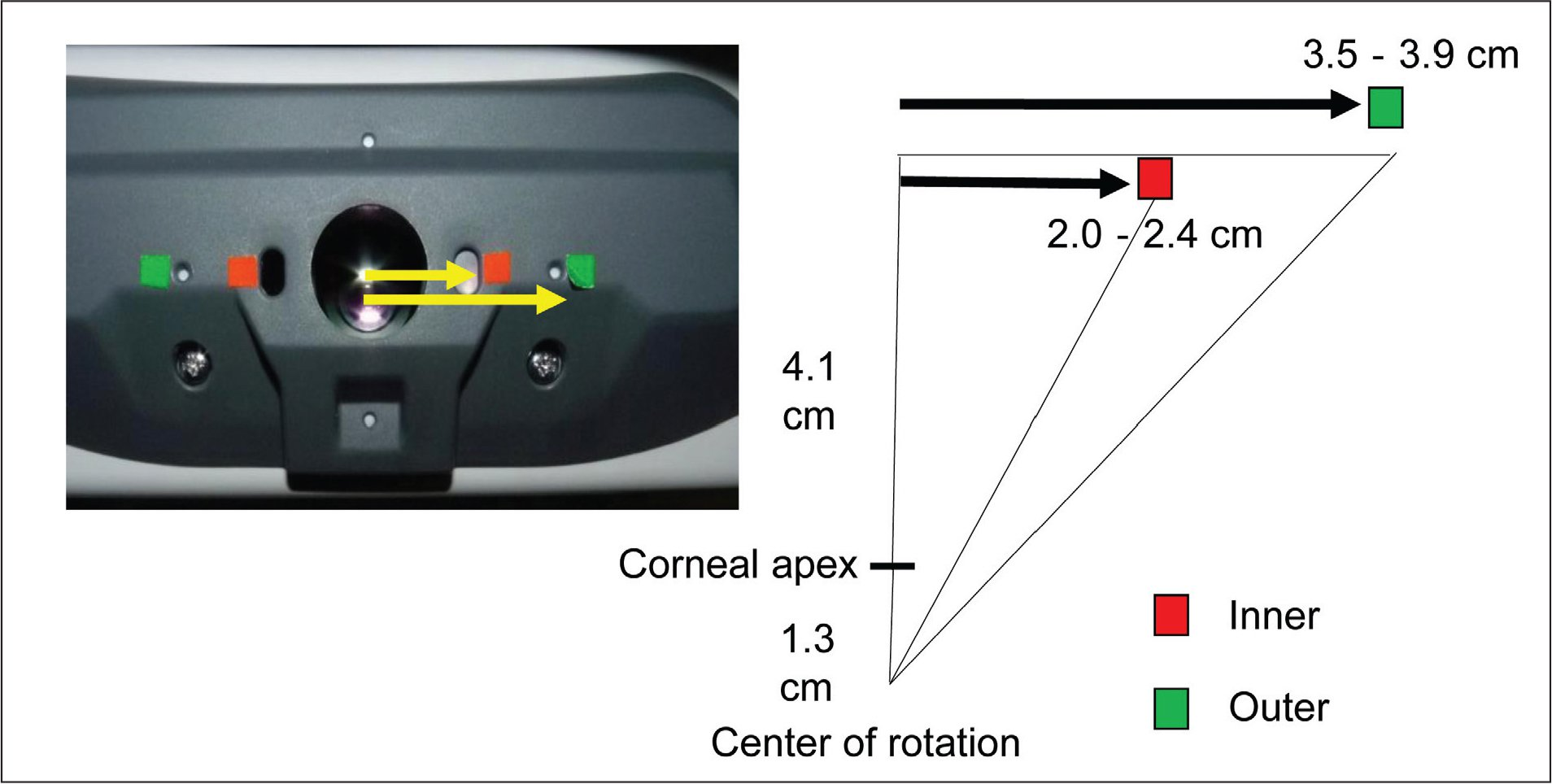 Fixation targets for the measurement of the angle and extraocular muscle insertion site distance using anterior segment optical coherence tomography (AS-OCT); 4-mm square stickers for two gaze fixation targets were placed. A red sticker was placed 2 to 2.4 cm from the objective lens for the inner gaze fixation target and a green sticker was placed 3.5 to 3.9 cm from the objective lens for the outer gaze fixation target on the AS-OCT instrument. The target gaze locations required 20.3 to 23.7 and 33 to 35.8 degrees of ocular rotation with a 5.4-cm distance between the ocular surface and the measurement window.
