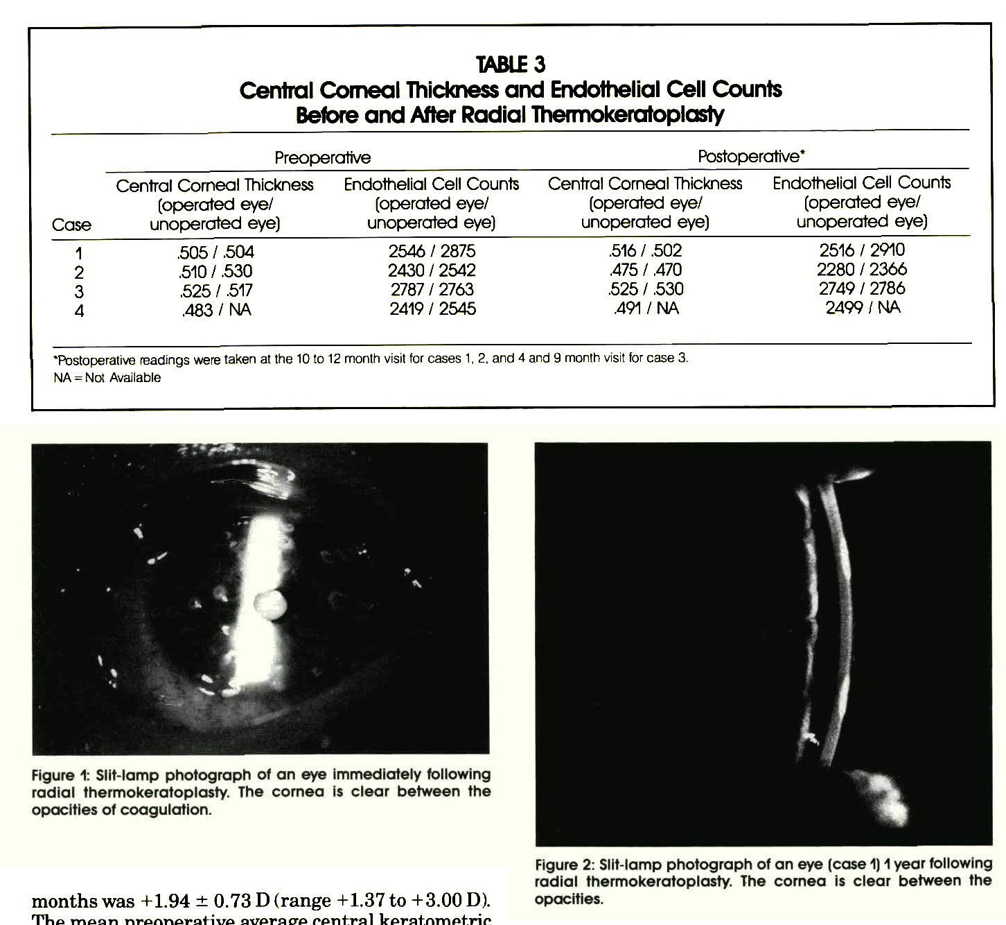 TABLE 3Central Corneal Thickness and Endothelial Cell Counts Before and After Radial ThermokeratoplastyFigure 1: Slit-lamp photograph of an eye immediately following radial thermokeratoplasty. The cornea is clear between the opacities of coagulation.Figure 2: Slit-lamp photograph of an eye (case 1) 1 year following radial thermokeratoplasty. The cornea is clear between the opacities.
