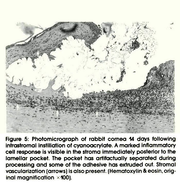 Figure 5: Photomicrograph of rabbit cornea 14 days following intrastromal instillation of cyanoacrylate. A marked inflammatory cell response is visible in the stroma Immediately posterior to the lamellar pocket. The pocket has artifactually separated during processing and some of the adhesive has extruded out. Stromal vascularization (arrows) is also present. (Hematoxylin & eosin. original magnification x 100).