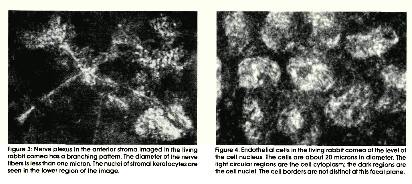 Figure 3: Nerve plexus in the anterior stroma imaged in the living rabbit cornea has a branching pattern. The diameter of the nerve fibers is less than one micron. The nuclei of stromal keratocytes are seen in the lower region of the image.Figure 4: Endothelial cells in the living rabbit cornea at the level of the cell nucleus. The cells are about 20 microns in diameter. The light circular regions are the cell cytoplasm; the dark regions are the cell nuclei. The cell borders are not distinct at this focal plane.