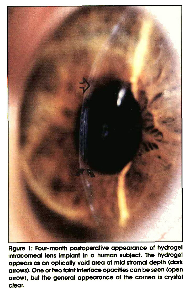 Figure 1: Four-month postoperative appearance of hydrogel intracorneal lens implant in a human subject. The hydrogel appears as an optically void area at mid stromal depth (dark arrows). One or two faint interface opacities can be seen (open arrow), but the general appearance of the cornea is crystal ctear.