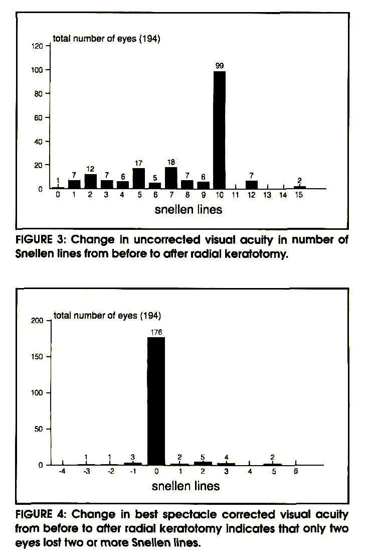 FIGURE 3: Change In uncorrected visual acuity in number of Snellen lines from before to after radial keratotomy.FIGURE 4: Change in best spectacle corrected visual acuity from before to after radial keratotomy indicates that onty two eyes lost two or more Snellen lines.