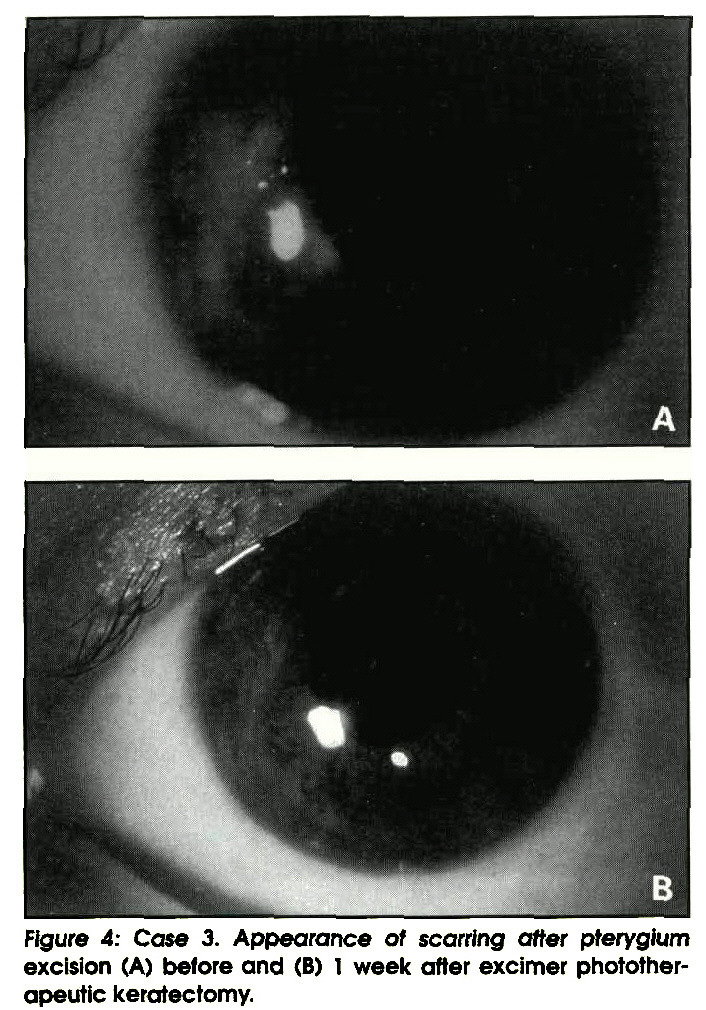 Figure 4: Case 3. Appearance of scarring after pterygium excision (A) before and (B) 1 week after excimer phototherapeutic keratectomy.
