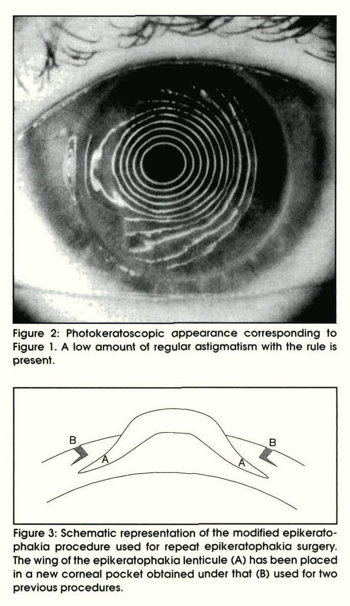 Figure 2: Photokeratoscopic appearance corresponding to Figure 1 . A low amount of regular astigmatism with the rule is present.Figure 3: Schematic representation of the modified epikeratophakia procedure used for repeat epikeratophakia surgery. The wing of the epikeratophakia lenticule (A) has been placed in a new corneal pocket obtained under that (B) used for two previous procedures.