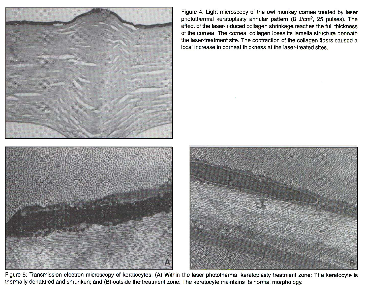 Figure 4: Light microscopy of the owl monkey cornea treated by laser photothermal keratoplasty annular pattern (8 J/cmp 2, 25 pulses). The effect of the laser-induced collagen shrinkage reaches the full thickness of the cornea. The corneal collagen loses its lamella structure beneath the laser-treatment site. The contraction of the collagen fibers caused a local increase in corneal thickness at the laser-treated sites.Figure 5: Transmission electron microscopy of keratocytes: (A) Within the laser photothermal keratoplasty treatment zone: The keratocyte is thermally denatured and shrunken; and (B) outside the treatment zone: The keratocyte maintains its normal morphology.