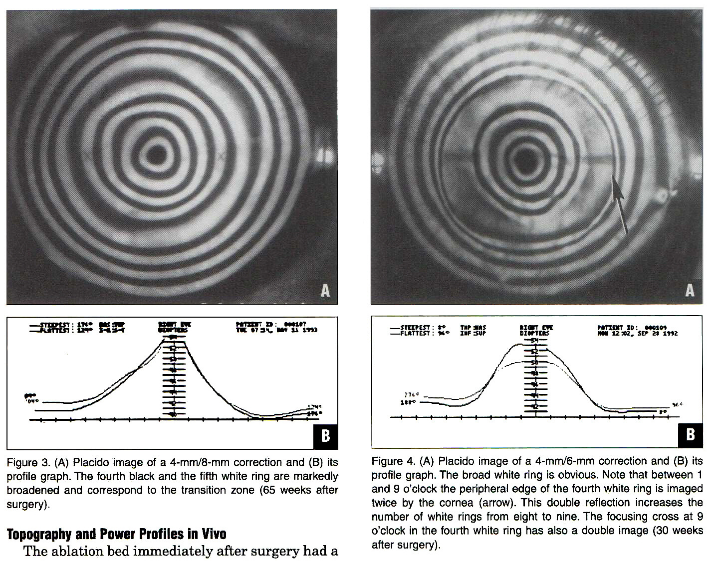 Figure 3. (A) Placido image of a 4-mm/8-mm correction and (B) its profile graph. The fourth black and the fifth white ring are markedly broadened and correspond to the transition zone (65 weeks after surgery).Figure 4. (A) Placido image of a 4-mm/6-mm correction and (B) its profile graph. The broad white ring is obvious. Note that between 1 and 9 o'clock the peripheral edge of the fourth white ring is imaged twice by the cornea (arrow). This double reflection increases the number of white rings from eight to nine. The focusing cross at 9 o'clock in the fourth white ring has also a double image (30 weeks after surgery).