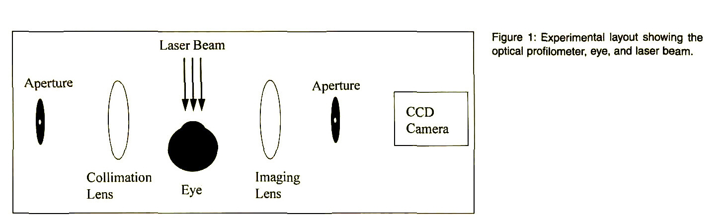 Figure 1: Experimental layout showing the optical profilometer, eye, and laser beam.
