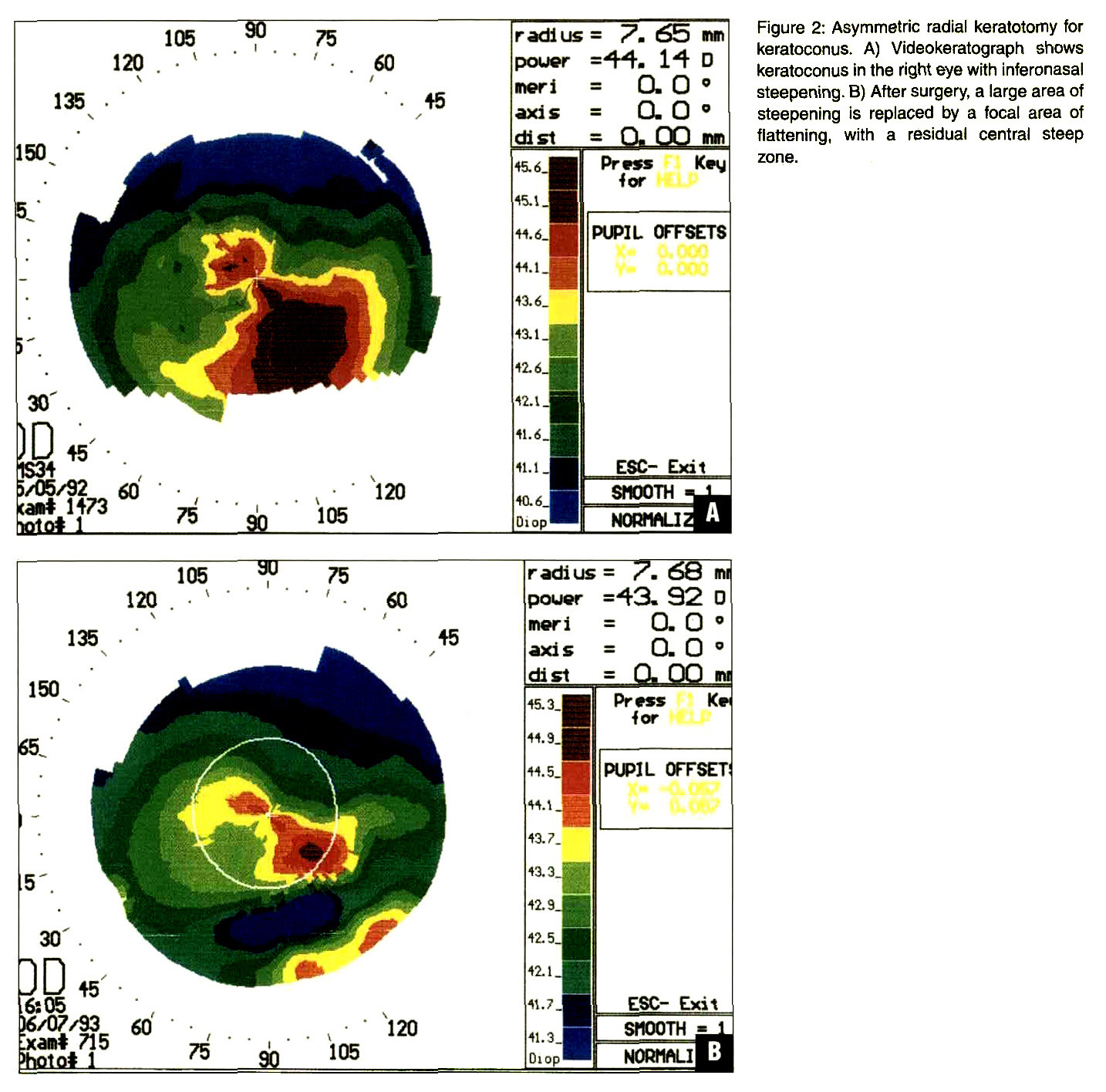 Figure 2: Asymmetric radial keratotomy for keratoconus. A) Videokeratograph shows keratoconus in the right eye with inferonasal steepening. B) After surgery, a large area of steepening is replaced by a focal area of flattening, with a residual central steep zone.