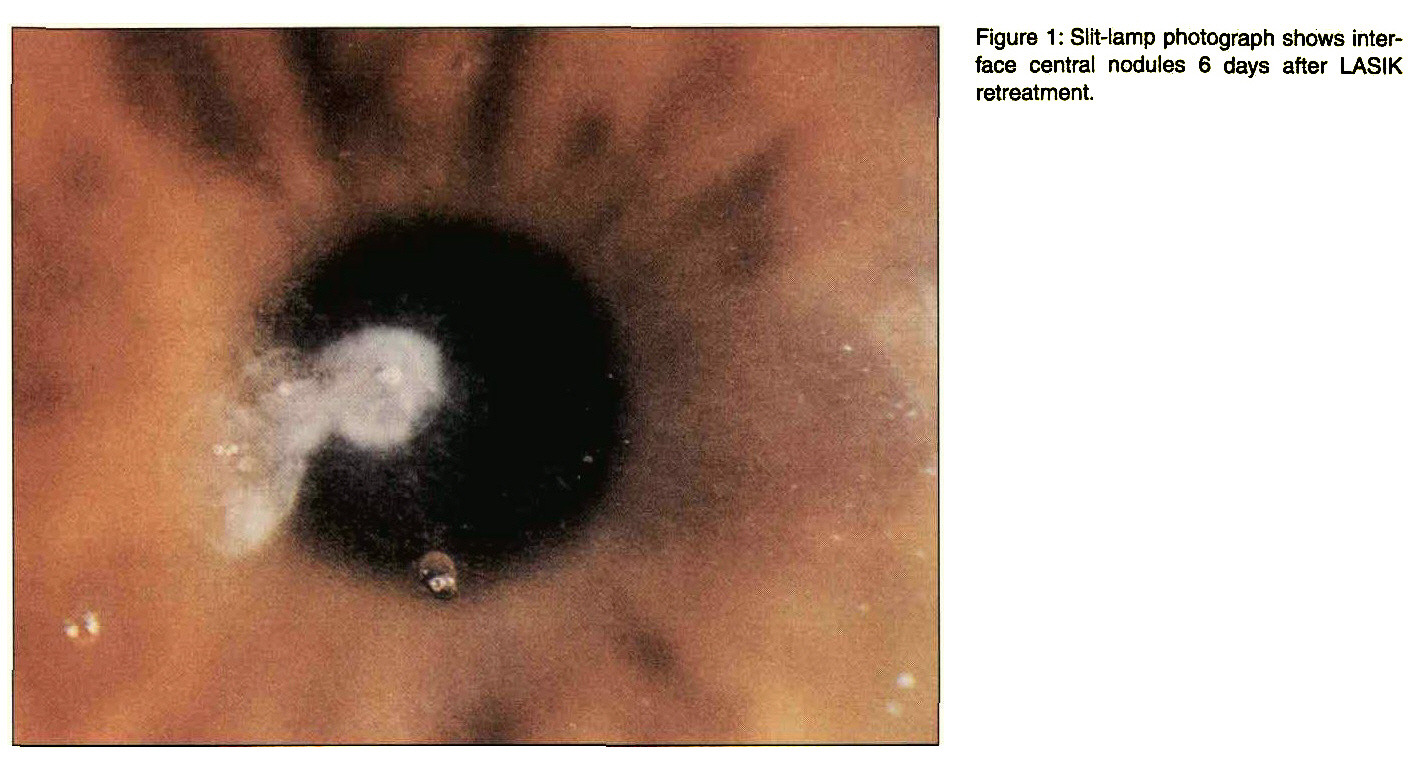 Figure 1 : Slit-lamp photograph shows interface central nodules 6 days after LASIK retreatment.