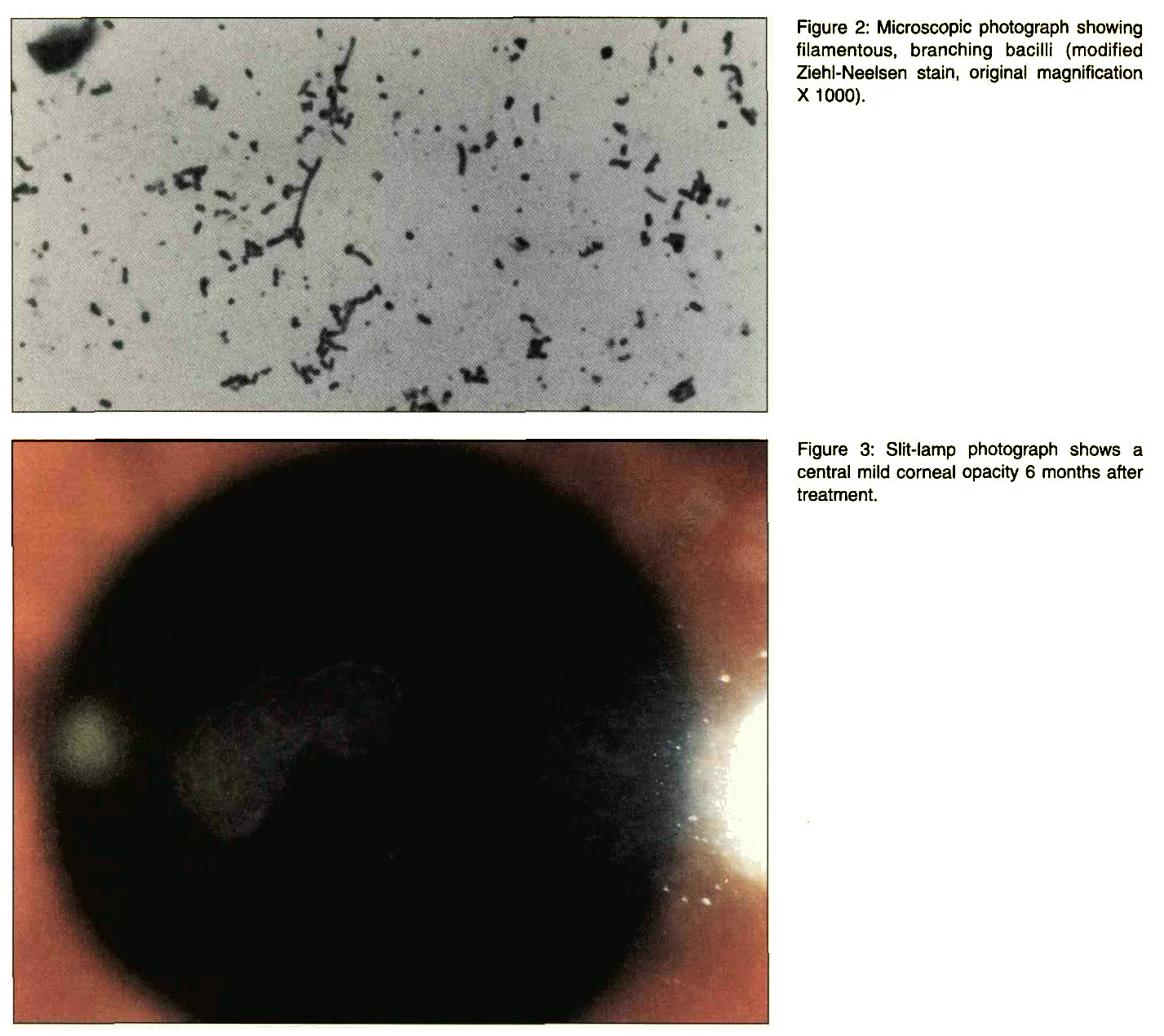 Figure 2: Microscopic photograph showing filamentous, branching bacilli (modified Ziehl-Neelsen stain, original magnification X 1000).Figure 3: Slit-lamp photograph shows a central mild corneal opacity 6 months after treatment.