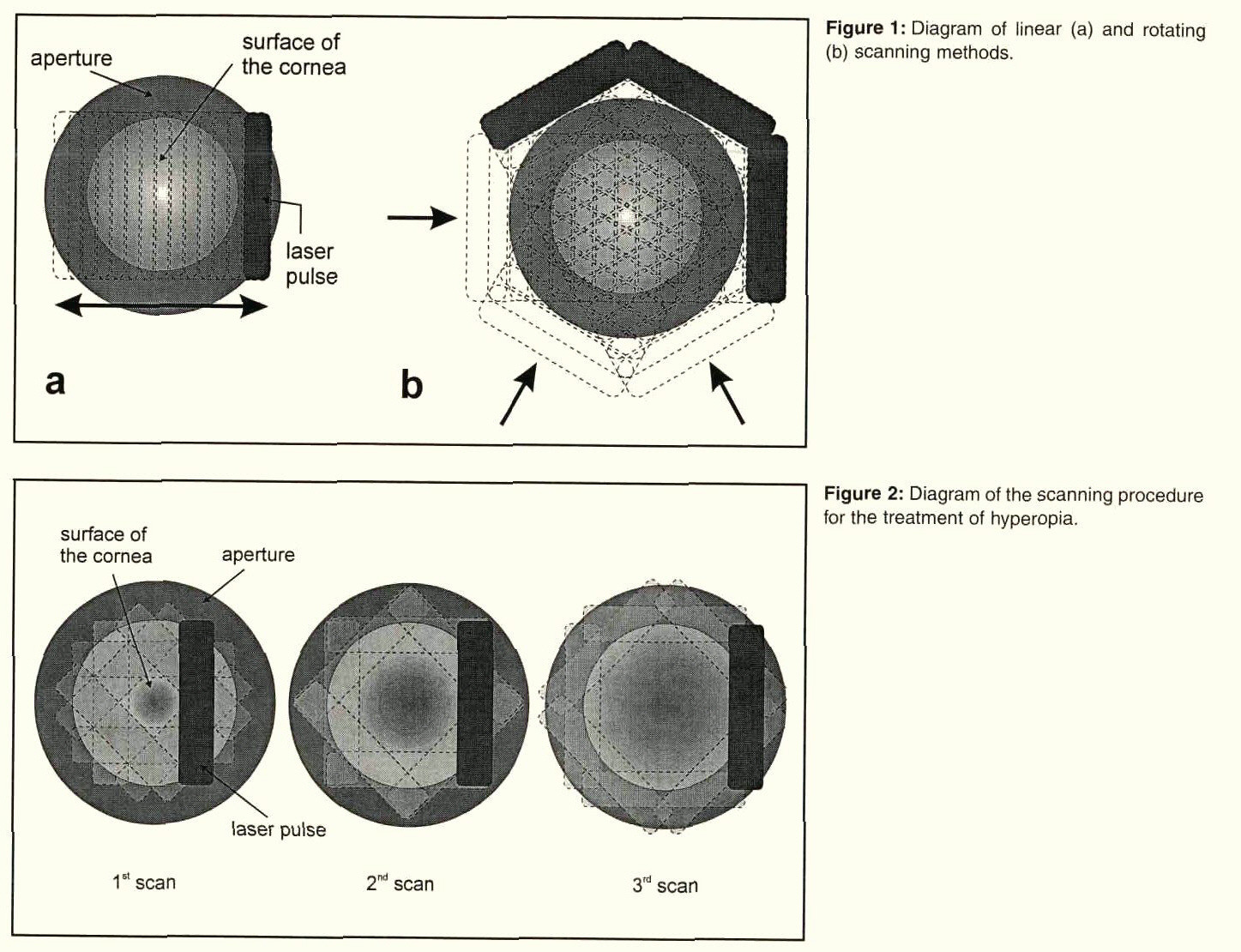 A scanning and rotating slit arf excimer laser delivery system for figure 1 diagram of linear a and rotating b scanning methods pooptronica Images