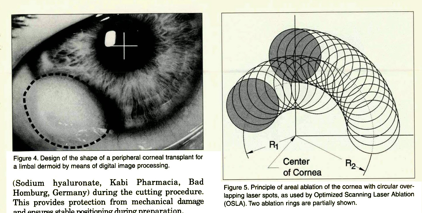 Figure 4. Design of the shape of a peripheral corneal transplant for a limbal dermoid by means of digital image processing.Figure 5. Principle of areal ablation of the cornea with circular overlapping laser spots, as used by Optimized Scanning Laser Ablation (OSLA). Two ablation rings are partially shown.