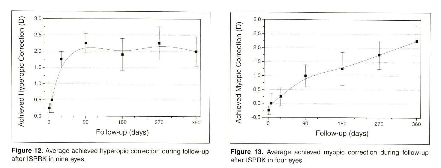 Figure 12. Average achieved hyperopic correction during follow-up after ISPRK in nine eyes.Figure 13. Average achieved myopic correction during follow-up after ISPRK in four eyes.