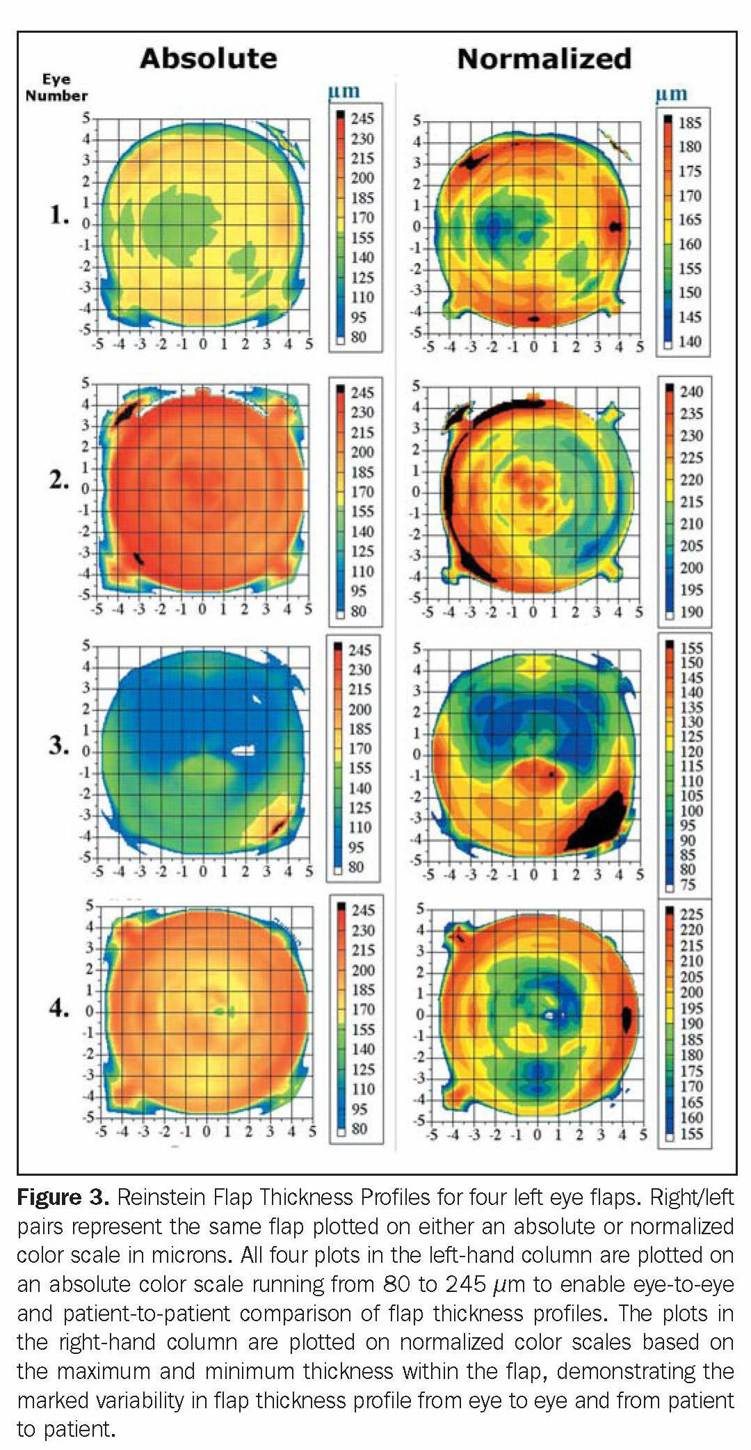 Figure 3. Reinstein Flap Thickness Profiles for four left eye flaps. Right/left pairs represent the same flap plotted on either an absolute or normalized color scale in microns. All four plots in the left-hand column are plotted on an absolute color scale running from 80 to 245 µm to enable eye-to-eye and patient-to- patient comparison of flap thickness profiles. The plots in the right-hand column are plotted on normalized color scales based on the maximum and minimum thickness within the flap, demonstrating the marked variability in flap thickness profile from eye to eye and from patient to patient.
