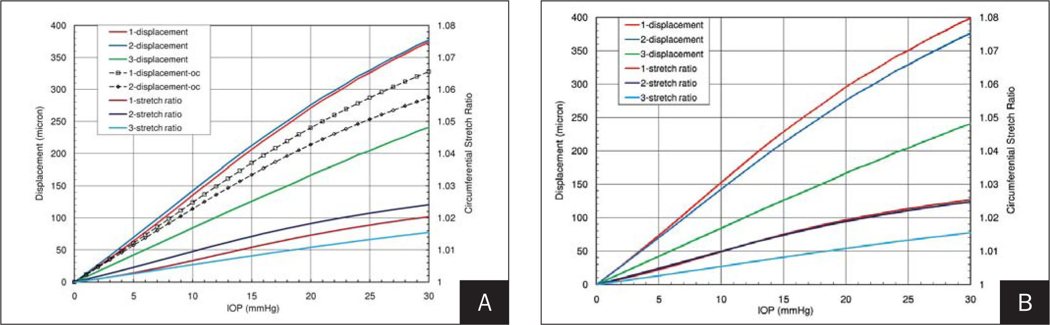 Displacement and Stretch Ratio as a Function of Intraocular Pressure (IOP) at the Center, Paracenter, and Limbus in A) a Preoperative LASIK Low-Stiffness (W) Whole-Eye Model and Cornea-Only (fixed Limbus) Model, and B) a Postoperative LASIK 6D-W Whole-Eye Model. Increasing IOP Favors Paracentral Corneal Displacement in Preoperative Whole-Eye Models. Predominant Displacements Are in the Central Cornea in Unoperated Cornea only when the Cornea Is Modeled Without Consideration of Extracorneal Structures. In a Lower Stiffness Cornea, 6.00-D Myopic LASIK Causes a Shift in the Region of Predominant Displacement to the Corneal Center.
