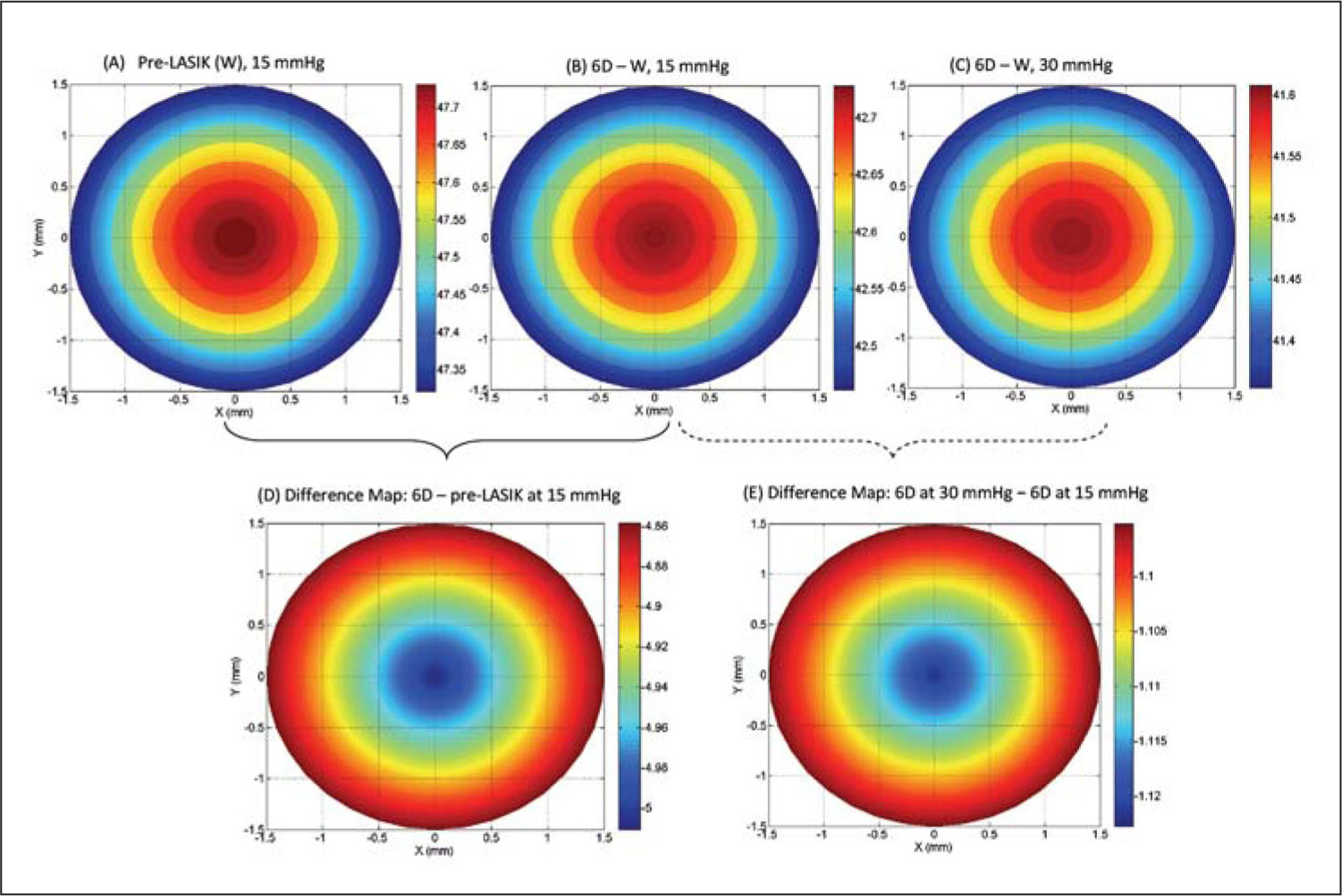 Tangential Power Maps for Preoperative LASIK (W), 6D-W at 15 and 30 mmHg, and Their Difference Map (postoperative–Preoperative LASIK).