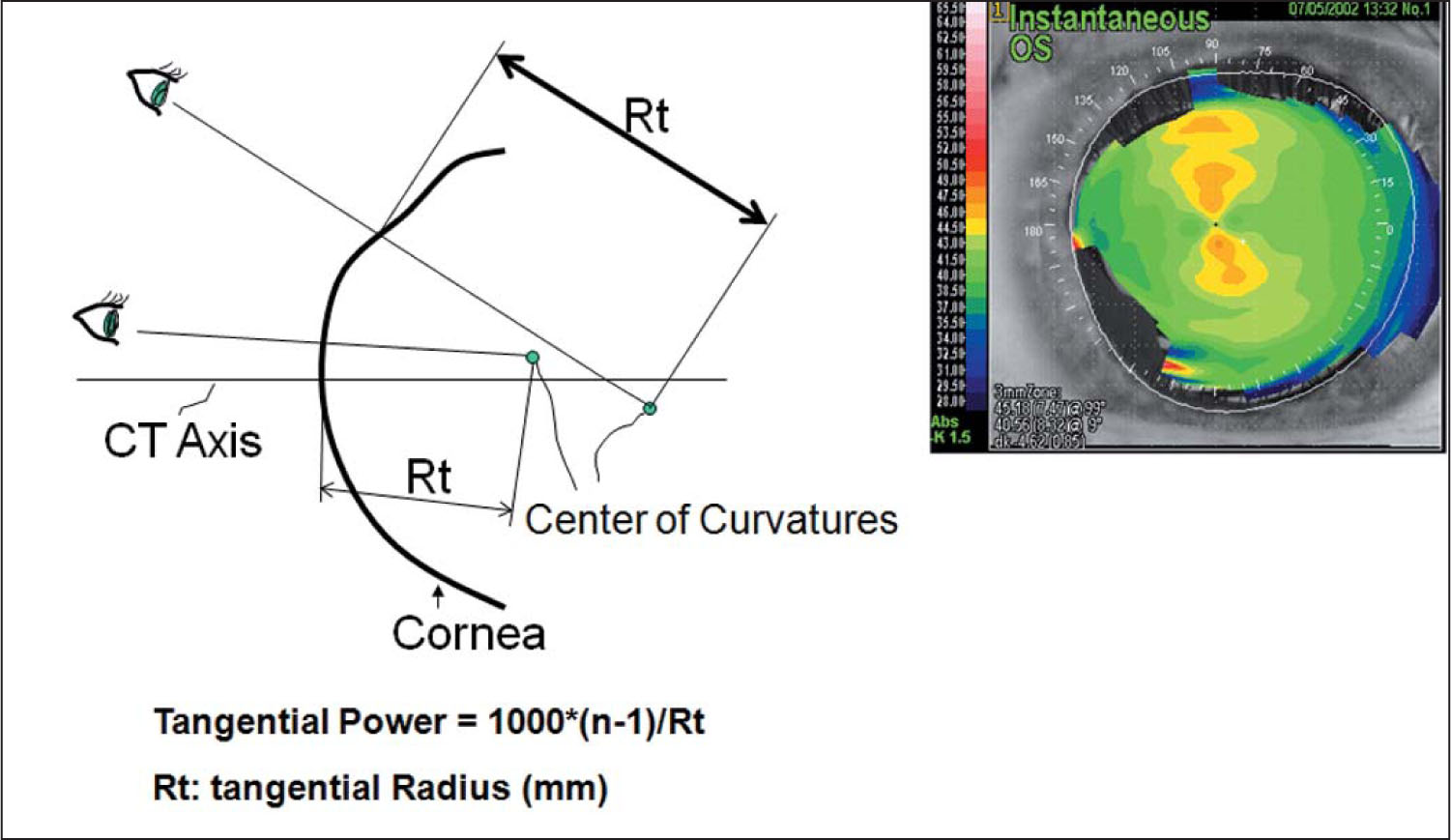 Schematic of Instantaneous Topography Including Sample Topography of the Left Eye (same as Figure 1). Yellow Denotes Steeper Curvature than Green. CT Axis = Corneal Topography Axis