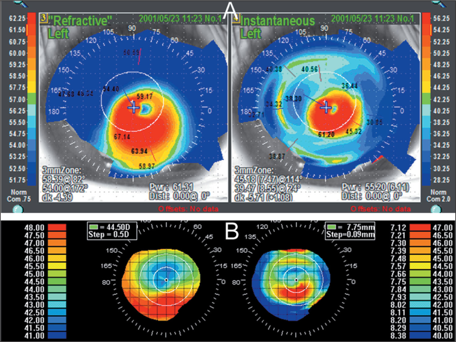 Refractive (left Images) and Instantaneous Corneal (right Images) Topographies of A) a Patient with Keratoconus and B) a Patient with Contact Lens Warpage.