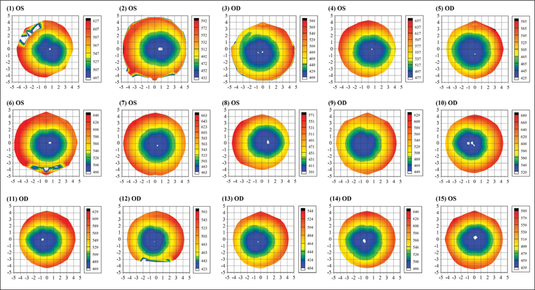 Stromal Thickness Maps of 15 Randomly Selected Eyes Each Plotted with an Individual Color Scale Representing the Stromal Thickness in Microns. A Cartesian 1-mm Grid Is Superimposed with the Origin at the Corneal Vertex. The Epithelial Thickness Profiles of the Same 15 Eyes Have Been Published Previously.18