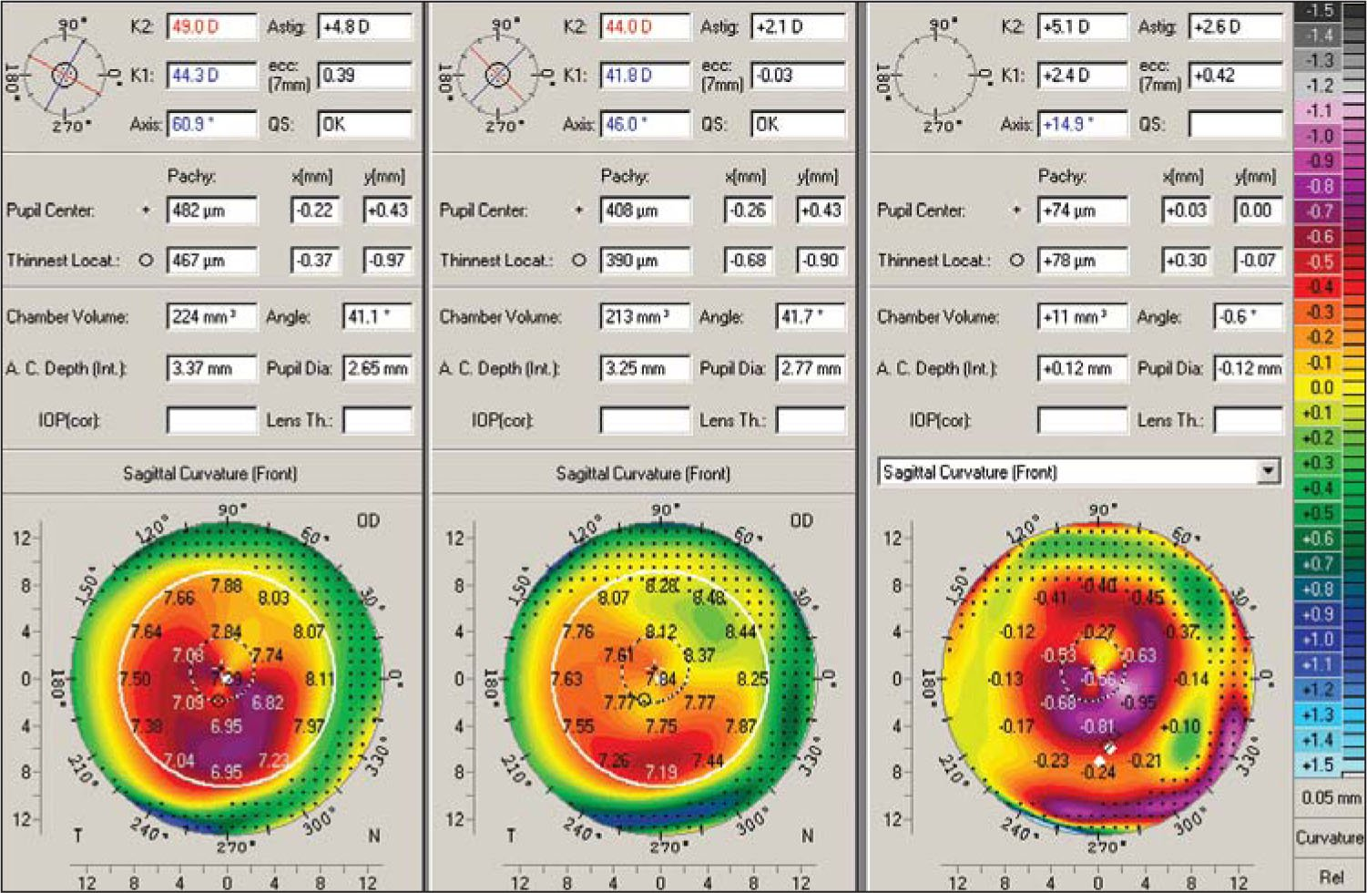 Representative Corneal Topographies from Sequential Pentacam Examinations Are Shown in a 29-Year-Old Patient from the Simultaneous Group (same-Day, Simultaneous Topography-Guided Photorefractive Keratectomy [PRK] and Corneal Collagen Cross-Linking [CXL]). The Difference Map (right Topography) Is Shown for the Changes from Preoperative (left Topography) to 2 Years Postoperative (middle Topography). The Pentacam Data Demonstrate the Change of Keratometric Data from 49 and 44.3 @ 60.9° to 44 and 41.8 @ 46°. Changes in Visual Acuity and Refraction Data from Pre- to Postoperative Were: Uncorrected Visual Acuity 20/100 to 20/25 and Best Spectacle-Corrected Visual Acuity (bscva) 20/30 with −2.75 −3.50 @ 65 to Bscva 20/20 with +0.50 −1.00 @ 35 at 2 Years. The Difference Map Illustrates the Surface Change Achieved by the Simultaneous Topography-Guided PRK and CXL Technique, Which Resembles a Combined Myopic PRK over the Cone Apex and an Asymmetric Hyperopic PRK in the Periphery.