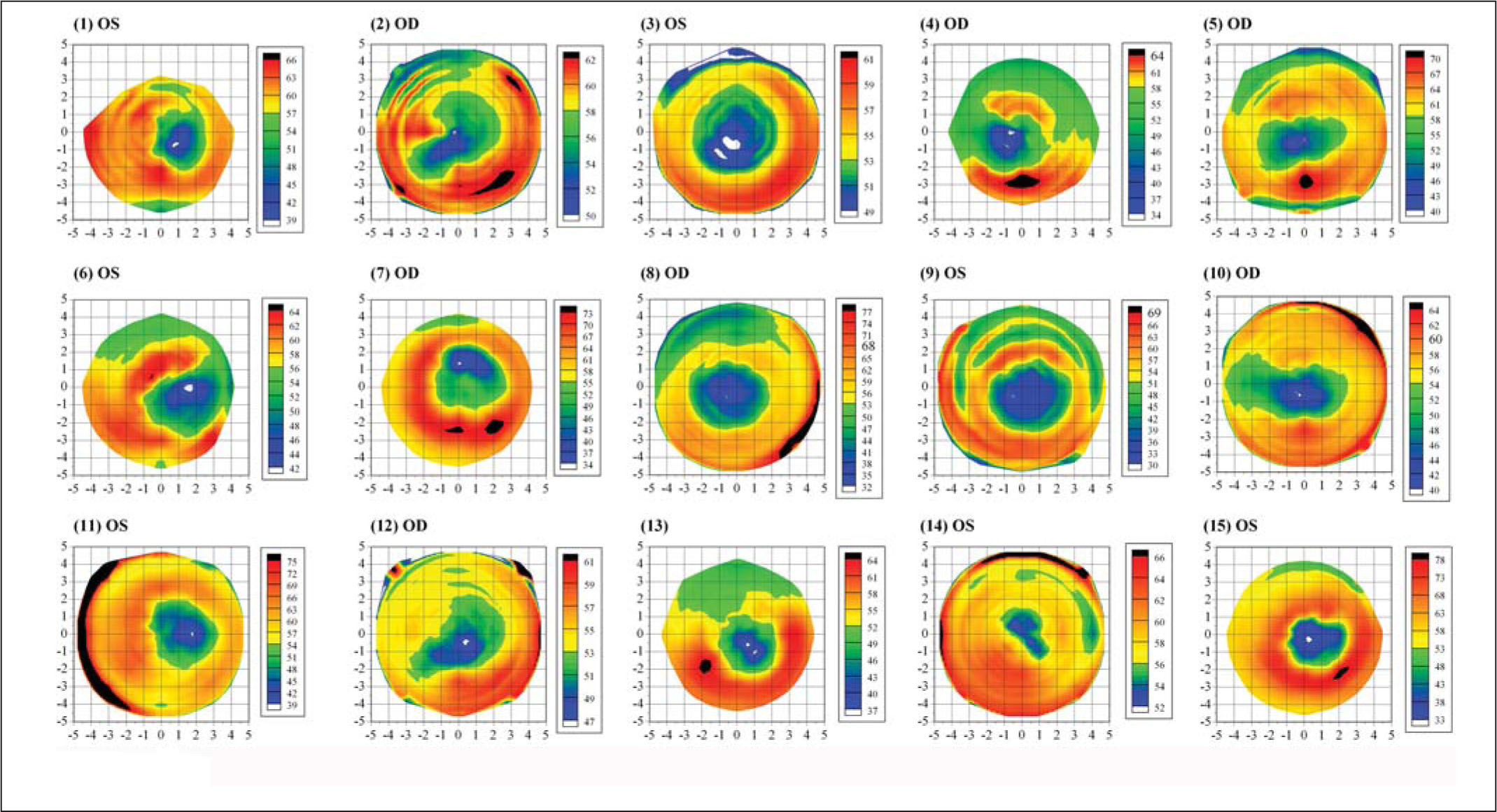 Epithelial Thickness Maps of 15 Randomly Selected Eyes Each Plotted with an Individual Color Scale Representing the Epithelial Thickness in Microns. A Cartesian 1-mm Grid Is Superimposed with the Origin at the Corneal Vertex.
