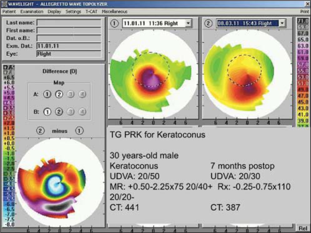 Topography-guided photorefractive keratectomy with cross-linking for keratoconus.