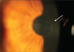 Slit-lamp photograph demonstrating intracorneal inlay (Flexivue Microlens; Presbia Cooperatief UA, Amsterdam, The Netherlands) implantation (arrow) in a pocket created with a femtosecond laser.