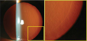 Retroillumination photograph of the cornea of a left eye 1 day after small-incision lenticular extraction. The 2.25-mm small incision can be seen superotemporally through which the refractive stromal lenticule was extracted. The edge of the lenticule can also be clearly seen. The image on the right shows a magnified view of the area indicated by the yellow square. In this magnified image, the edge of the cap—the anterior interface of the lenticule—can also be seen outside the edge of the lenticule.