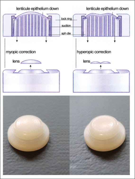Diagrams (above) and photographs (below) of a myopic (left) and hyperopic (right) suction die used in the Barraquer-Krumeich-Swinger non-freeze technique. The ressected corneal disc was placed epithelial side down onto the die and a second pass of the microkeratome removed the required stromal tissue. For myopic corrections, the shape of the die exposed central stroma, whereas the shape of the die exposed peripheral stroma for hyperopic corrections. A set of suction dies with different curvatures were available to treat a wide range of different refractions. (Image courtesy of Jörg H. Krumeich, MD.)