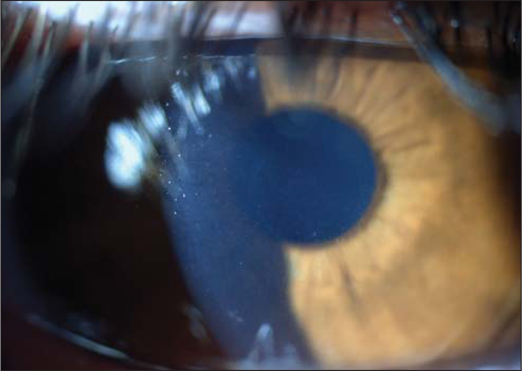 A slit-lamp image of a PresbyLens corneal inlay (ReVision Optics, Inc., Lake Forest, CA) in a constricted pupil. The inlay is best seen by light scattered from its edge and appears slightly inferior in this perspective.