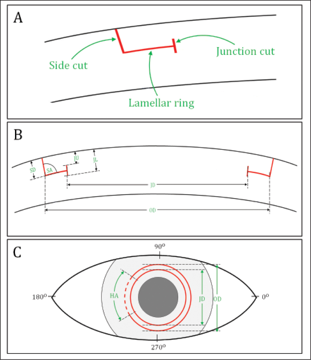 Illustrations of intrastromal incision permitted by VisuMax Circle option (Carl Zeiss Meditec, Jena, Germany). (A) The Circle option permits the creation of three basic components: a side cut with hinge, a lamellar ring, and a junction cut. (B) Cross-sectional view showing the adjustable femtosecond laser parameters to create the intrastromal incision. (C) Front view showing the user-selectable parameters to create the intrastromal incision. OD = outer diameter; JD = junction diameter; SD = side cut depth; SA = side cut angle; HA = hinge angle; JU = junction upper depth; JL = junction lower depth