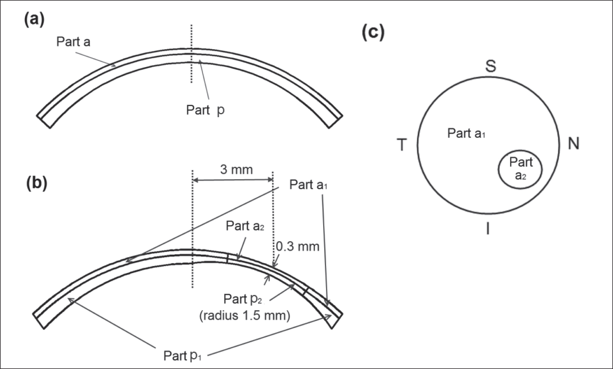 Material distributions for the (A) normal cornea, (B) keratoconic cornea, and (C) keratoconus region (viewed from the top). S = superior; I = inferior; N = nasal; T = temporal; a = anterior; p = posterior.