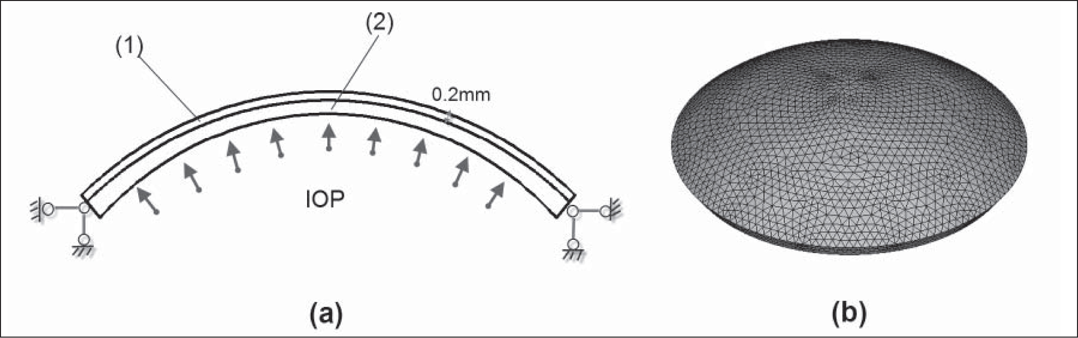 (A) Balanced model of the cornea under intraocular pressure. (B) Finite element meshed model for the normal cornea. The model was meshed by 4 node tetrahedron element and contained 23,534 elements.