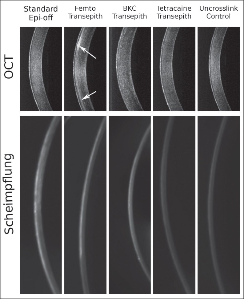 Optical coherence tomography (OCT) images obtained during OCT elastography and Scheimpflug densitometry images of representative corneas from each group 2 months after treatment. Note that the opacity (arrows) attributed to the femtosecond laser pocket can be clearly noted in the cornea from the femtosecond laser-assisted cross-linking (CXL) group in the top panel. (Original magnification ×40) Epi-off = epithelium-off, BKC = benzalkonium chloride