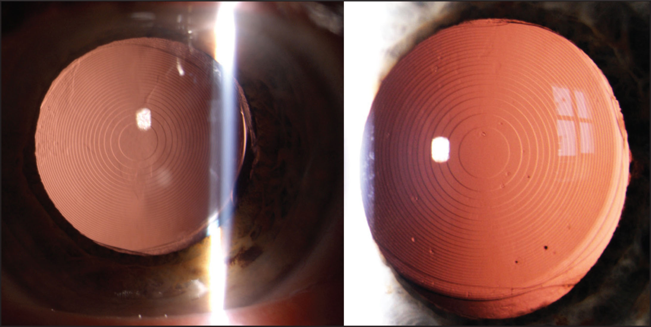 Intraocular lenses used in the study: (A) the bifocal diffractive IOL AT LISA 801 (Carl Zeiss Meditec, Jena, Germany) and (B) the trifocal diffractive IOL AT LISA tri 839 MP (Carl Zeiss Meditec).