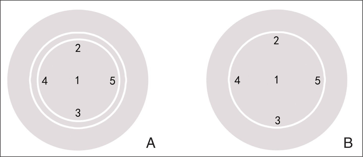 Diagrams of corneas after small incision lenticule extraction (SMILE) and femtosecond laser-assisted LASIK (femto-LASIK). Both figures show the five areas tested for corneal sensation. 1 = central corneal area; 2 = superior area; 3 = inferior area; 4 = temporal area; 5 = nasal area. The white line represents the (A) corneal cap or (B) flap (eg, the right eye).