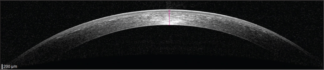 Anterior segment optical coherence tomography (AS-OCT) thickness measurements using the integrated system software 6 months after small-incision lenticule extraction.
